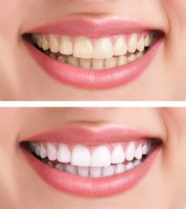 4 easy ways to get a brighter smile