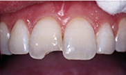 Before bonding was done by Houston cosmetic dentist Dr. Coleman