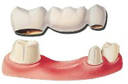 dental bridges replace one missing tooth